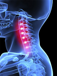 Health Condition Improvements at Align Spine Chiropractic & Wellness